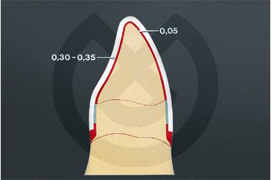 Product - ADAPTA OBLEAS TRANSPARENTES 0,6mm